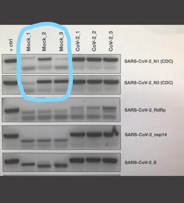 False Positivse for SARS-COV-2